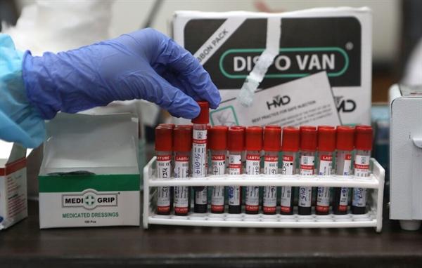 Nghiên cứu mới cho thấy các kháng thể chống lại bệnh tật và các tế bào miễn dịch đặc biệt vẫn tồn tại nhiều tháng sau khi nhiễm trùng COVID-19 được giải quyết. Nguồn ảnh: EPA.