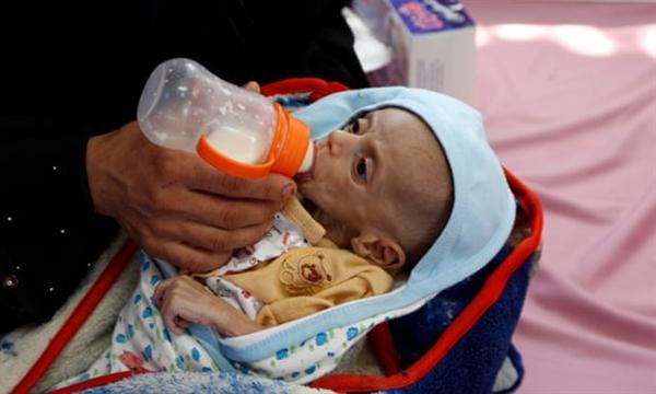 Một bà mẹ Yemen cho đứa con đang đói của mình bú khi đứa bé được điều trị ở Yemen, tháng 10.2020. Ảnh: The Guardian.